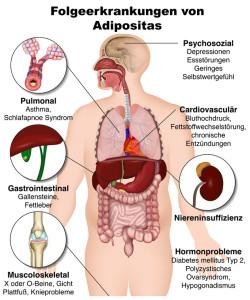 Folgen von Adipositas