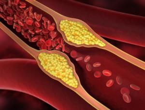 Arteriosklerose Atherosklerose