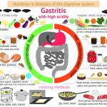 Infografik Gastritis - diese Nahrung ist zu empfehlen