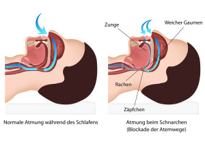 Schnarchen