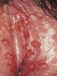 Zoster genitalis Gürtelrose im Genitalbereich