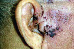 Gürtelrose am Ohr / Ohrmuschel bzw Gehörgang (Zoster oticus)