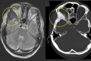 Fibröse Dysplasie Dysplasia fibrosa