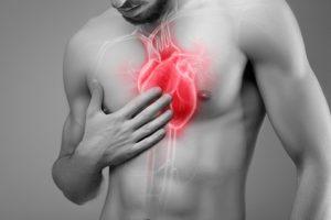 Herz in der Brust Herzmuskelentzündung (Myokarditis)