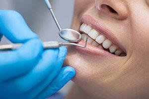 Zahnarzt Inlay