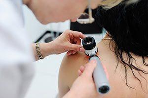 Hautarzt Läsion Dermatologe trockene Haut