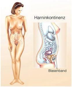 Harninkontinenz Blasenschwäche