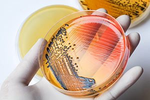 Bakterien Enterobakterien