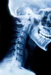 HWS Syndrom Röntgen Schädel Kopf