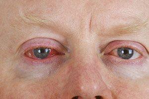 Augenentzündung Augengrippe