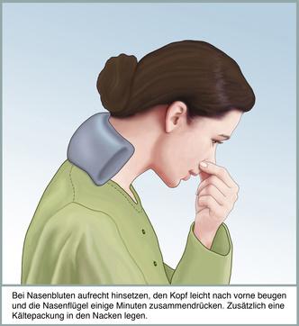 Nasenbluten, erste Hilfe. Ein kalter Waschlappen im Nacken stoppt die Blutung Symptome Nasenbluten
