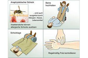 Erste Hilfe bei Allergischer Schock