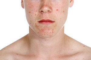 Akne Natrium bicarbonicum Schüssler-Salz Nr. 23 Akne mit Homöopathie behandeln