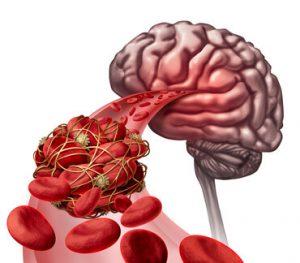 Blutgerinsel im Gehirn