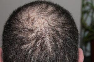 Regaine Männer - Dünnes Haar haarausfall hinterkopf