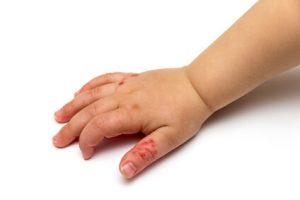 Hautkrankheit