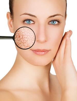 hautkrankheiten tockene Haut