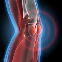 Kniegelenksarthrose, Symptome Knieschmerzen