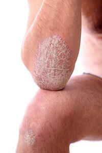 Schuppenflechte mit manuka honig behandeln