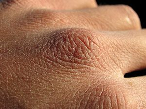Trockene Haut Linola Creme