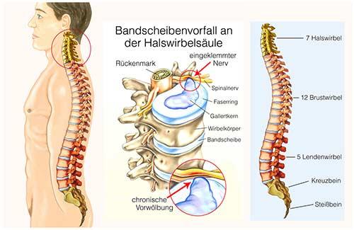 Bandscheibenvorfall halswirbelsäule