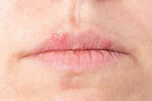 Lippenherpes Herpes simplex Virus Humane Herpesviren