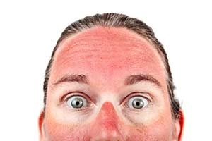 Erste Hilfe bei einem Sonnenbrand