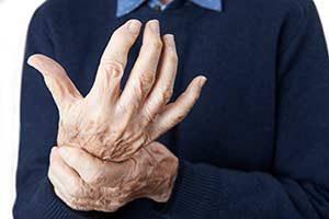Arthritis gelenkentzündung