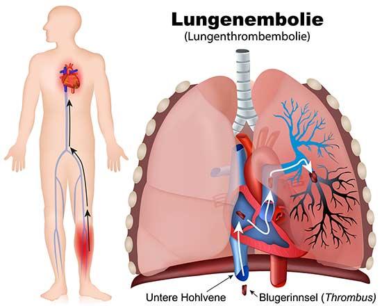 Lungenembolie darstellung