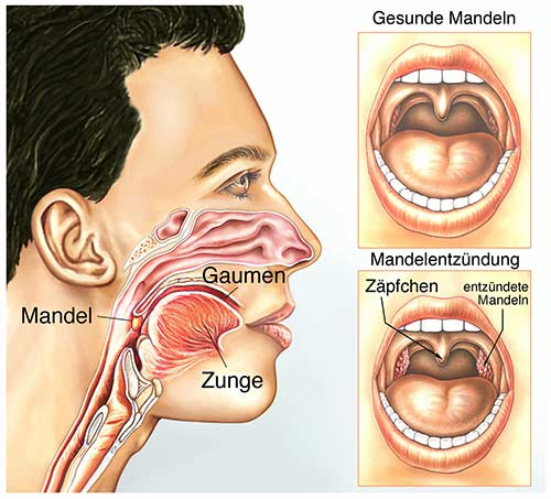 Mandelentzündung darstellung