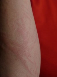 Hautrötung Arm