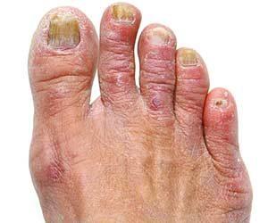 Reaktive Arthritiden: Gelenkschmerz nach Infekten