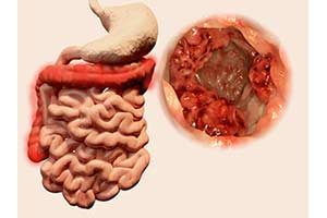 Behandlung Darmkrebsvorsorge Krebs Diät krebsdiät krebs-diät