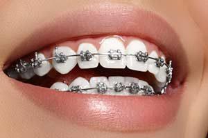 Zahnspange behandlung