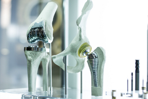 Behandlung Implantat