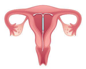 Behandlung Spirale Intrauterinpessaren