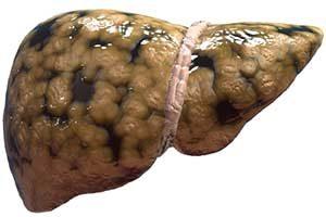Fettleber (Steatosis hepatis)