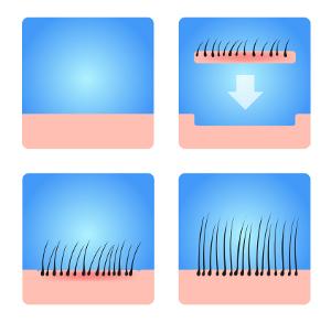 Behandlung Haartransplantation