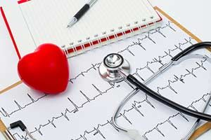 Vorhofflimmern (absolute Arrhythmie) Herzrhythmusstörung Defibrillator