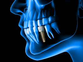 Behandlung Zahnersatz Implantat