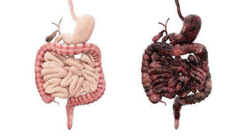 Morbus Crohn, Magen, Darm, Organe, Verdauung, Darmerkrankung, Darmkrankheit