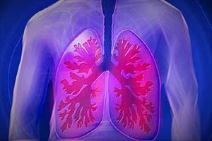 Pneumothorax (kollabierte Lunge)