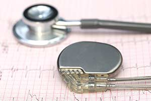 Herzschrittmacher Stent