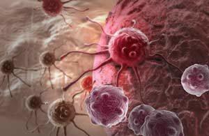 Behandlung Mastektomie Onkoviren