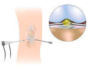 Behandlung Arthroskopie