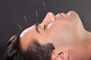 Behandlung Augenakupunktur
