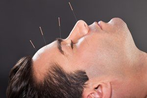 Behandlung Augenakupunktur, trockene Augen