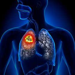 Lungenkrebs, karzinom