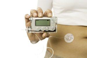 Behandlung Insulinpumpe