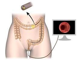 Behandlung Endoskopie